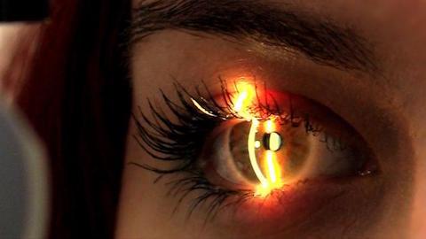 Contactologia Avançada e Superfície Ocular- 5ª Edição